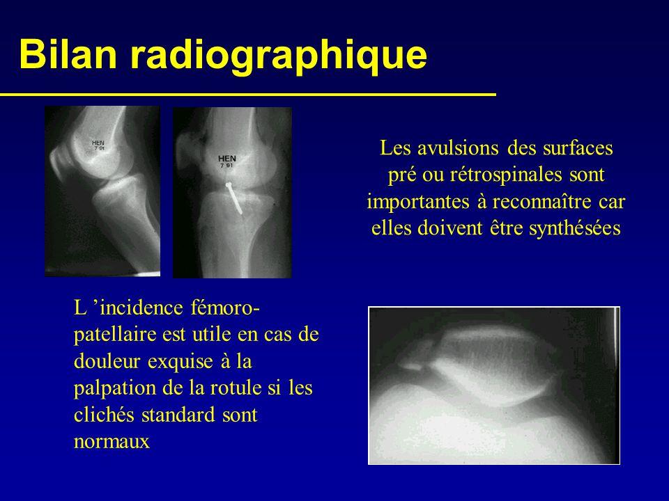 Bilan radiographique L 'incidence fémoro- patellaire est utile en cas de douleur exquise à la palpation de la rotule si les clichés standard sont norm