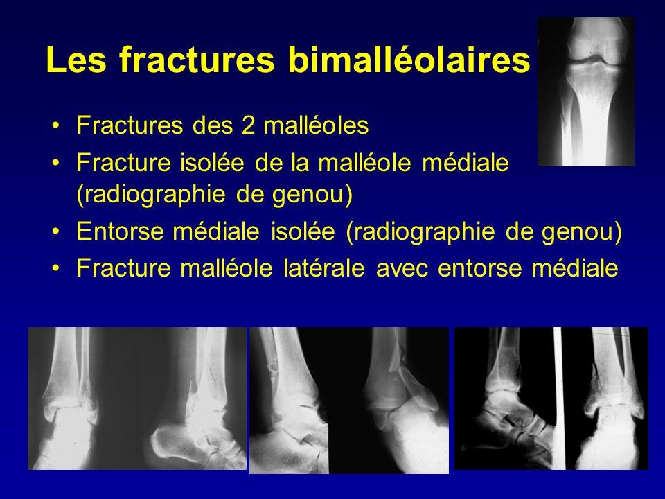 Les fractures bimalléolaires •Fractures des 2 malléoles •Fracture isolée de la malléole médiale (radiographie de genou) •Entorse médiale isolée (radio