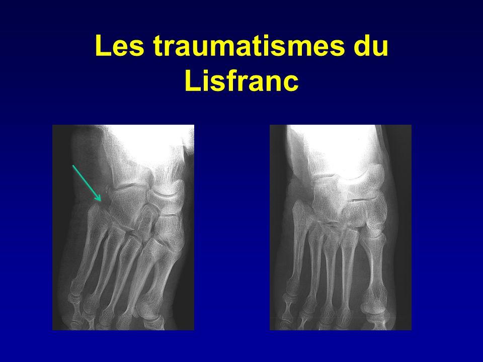Les traumatismes du Lisfranc