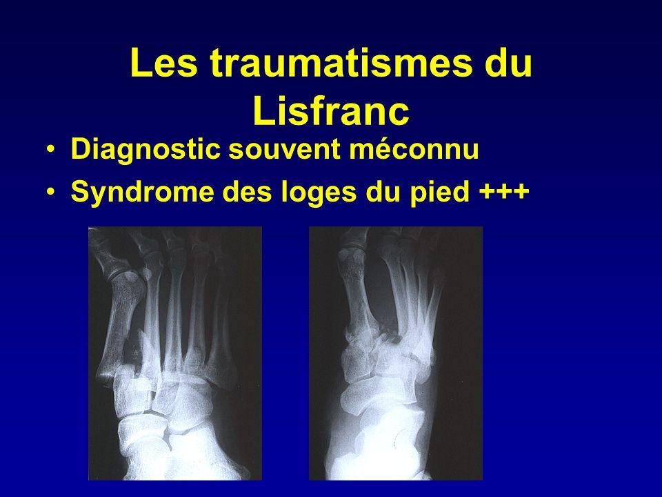 •Diagnostic souvent méconnu •Syndrome des loges du pied +++