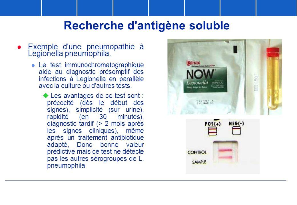 Recherche d'antigène soluble  Exemple d'une pneumopathie à Legionella pneumophila. l Le test immunochromatographique aide au diagnostic présomptif de