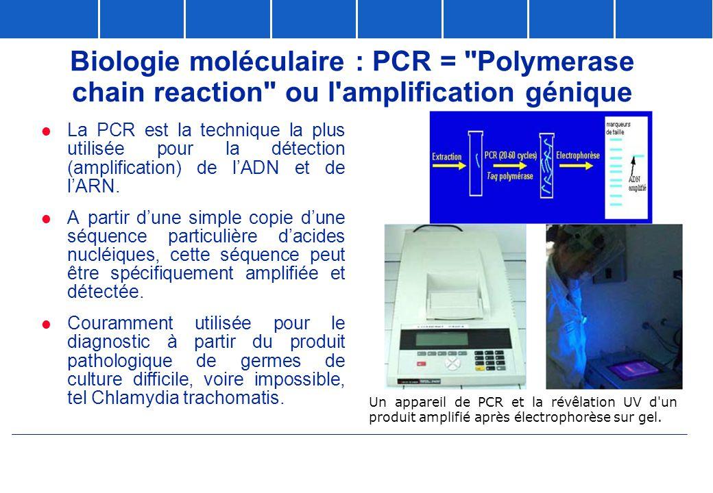 Un appareil de PCR et la révêlation UV d'un produit amplifié après électrophorèse sur gel. Biologie moléculaire : PCR =