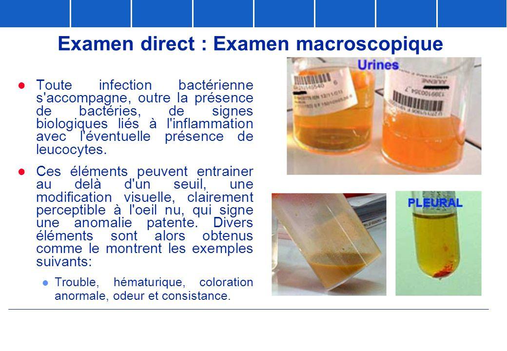 Examen direct : Examen macroscopique  Toute infection bactérienne s'accompagne, outre la présence de bactéries, de signes biologiques liés à l'inflam