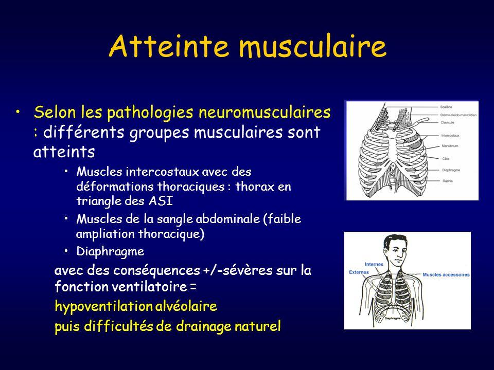 Atteinte musculaire •Selon les pathologies neuromusculaires : différents groupes musculaires sont atteints •Muscles intercostaux avec des déformations thoraciques : thorax en triangle des ASI •Muscles de la sangle abdominale (faible ampliation thoracique) •Diaphragme avec des conséquences +/-sévères sur la fonction ventilatoire = hypoventilation alvéolaire puis difficultés de drainage naturel
