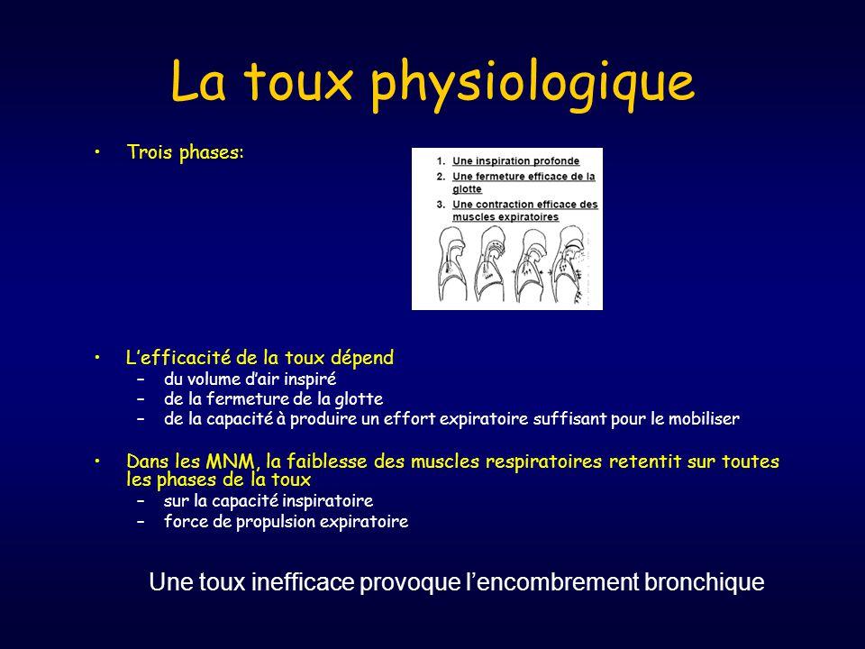 La toux physiologique •Trois phases: •L'efficacité de la toux dépend –du volume d'air inspiré –de la fermeture de la glotte –de la capacité à produire un effort expiratoire suffisant pour le mobiliser •Dans les MNM, la faiblesse des muscles respiratoires retentit sur toutes les phases de la toux –sur la capacité inspiratoire –force de propulsion expiratoire Une toux inefficace provoque l'encombrement bronchique