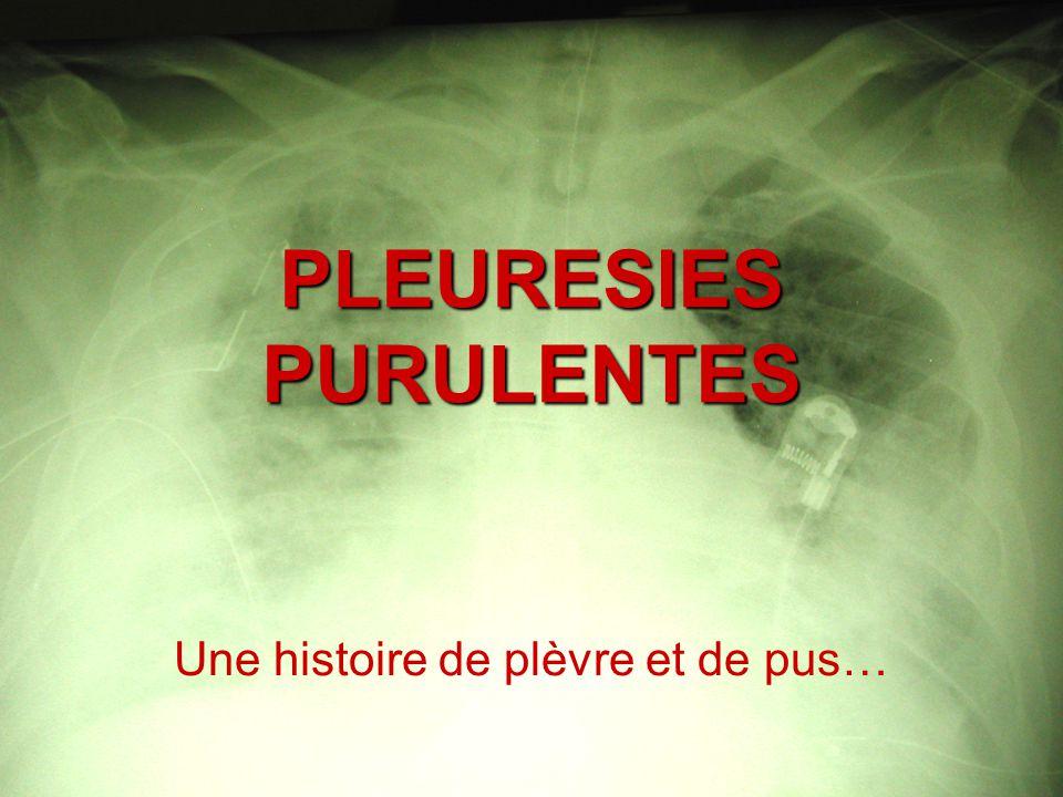 PLEURESIES PURULENTES Une histoire de plèvre et de pus…