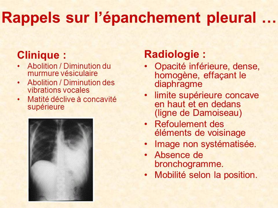 Rappels sur l'épanchement pleural … Clinique : •Abolition / Diminution du murmure vésiculaire •Abolition / Diminution des vibrations vocales •Matité d