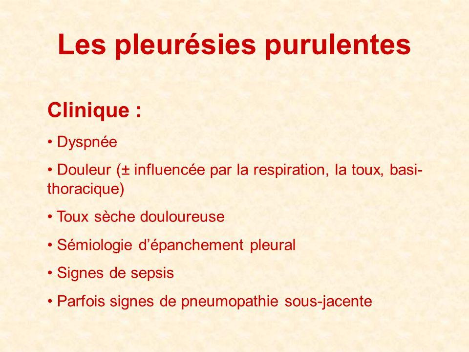 Les pleurésies purulentes Clinique : • Dyspnée • Douleur (± influencée par la respiration, la toux, basi- thoracique) • Toux sèche douloureuse • Sémio