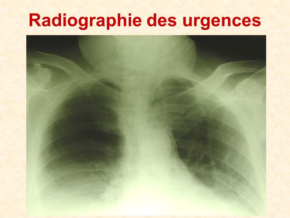 Radiographie des urgences