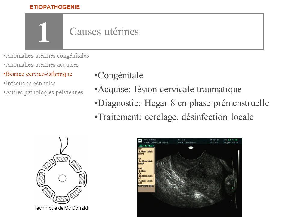 •Congénitale •Acquise: lésion cervicale traumatique •Diagnostic: Hegar 8 en phase prémenstruelle •Traitement: cerclage, désinfection locale Technique
