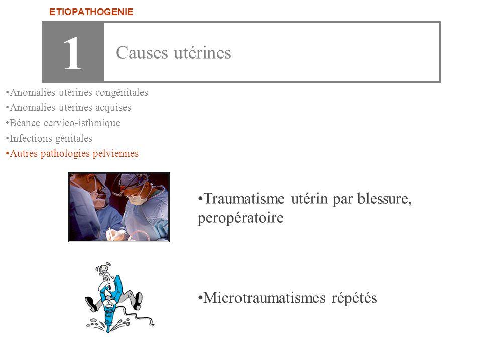 •Traumatisme utérin par blessure, peropératoire •Microtraumatismes répétés 1 Causes utérines ETIOPATHOGENIE •Anomalies utérines congénitales •Anomalie