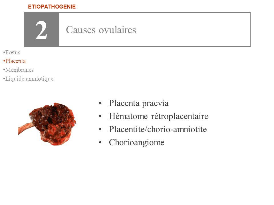 •Placenta praevia •Hématome rétroplacentaire •Placentite/chorio-amniotite •Chorioangiome 2 Causes ovulaires ETIOPATHOGENIE •Fœtus •Placenta •Membranes