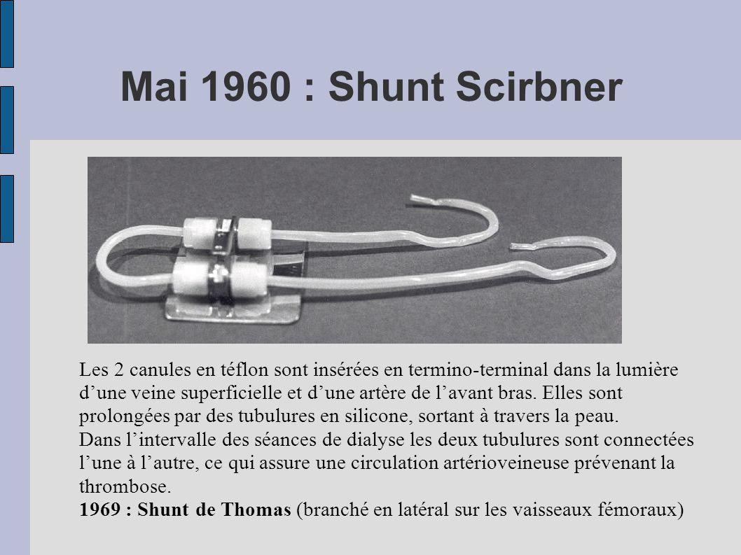 Mai 1960 : Shunt Scirbner Les 2 canules en téflon sont insérées en termino-terminal dans la lumière d'une veine superficielle et d'une artère de l'avant bras.
