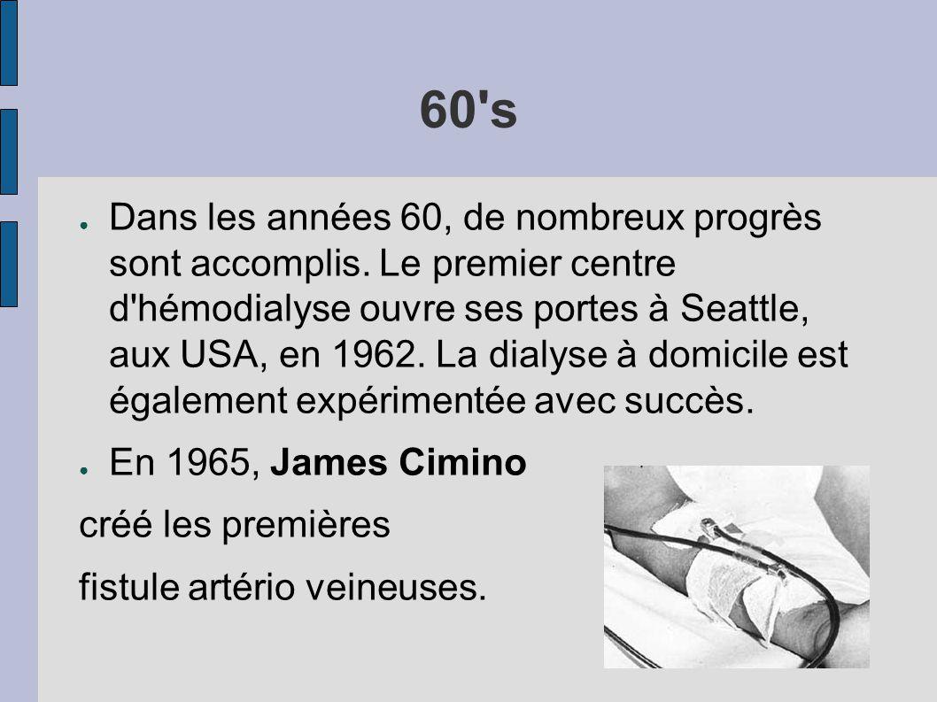 60's ● Dans les années 60, de nombreux progrès sont accomplis. Le premier centre d'hémodialyse ouvre ses portes à Seattle, aux USA, en 1962. La dialys