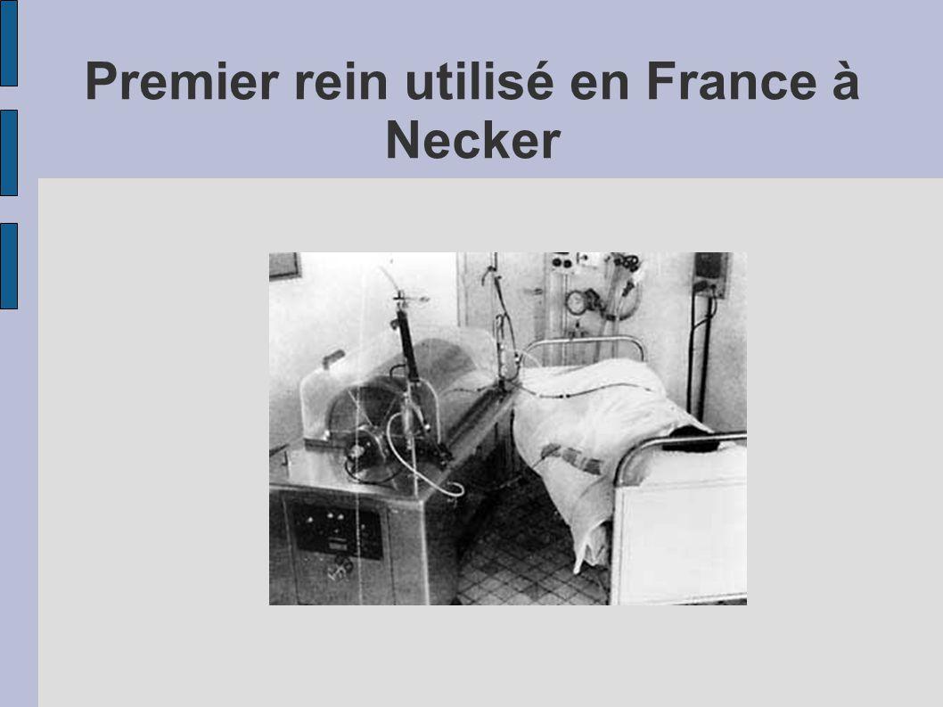 Premier rein utilisé en France à Necker