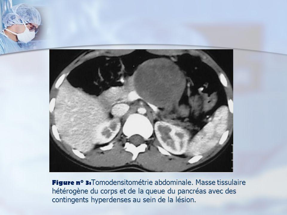 Tomodensitométrie abdominale. Masse tissulaire hétérogène du corps et de la queue du pancréas avec des contingents hyperdenses au sein de la lésion. F
