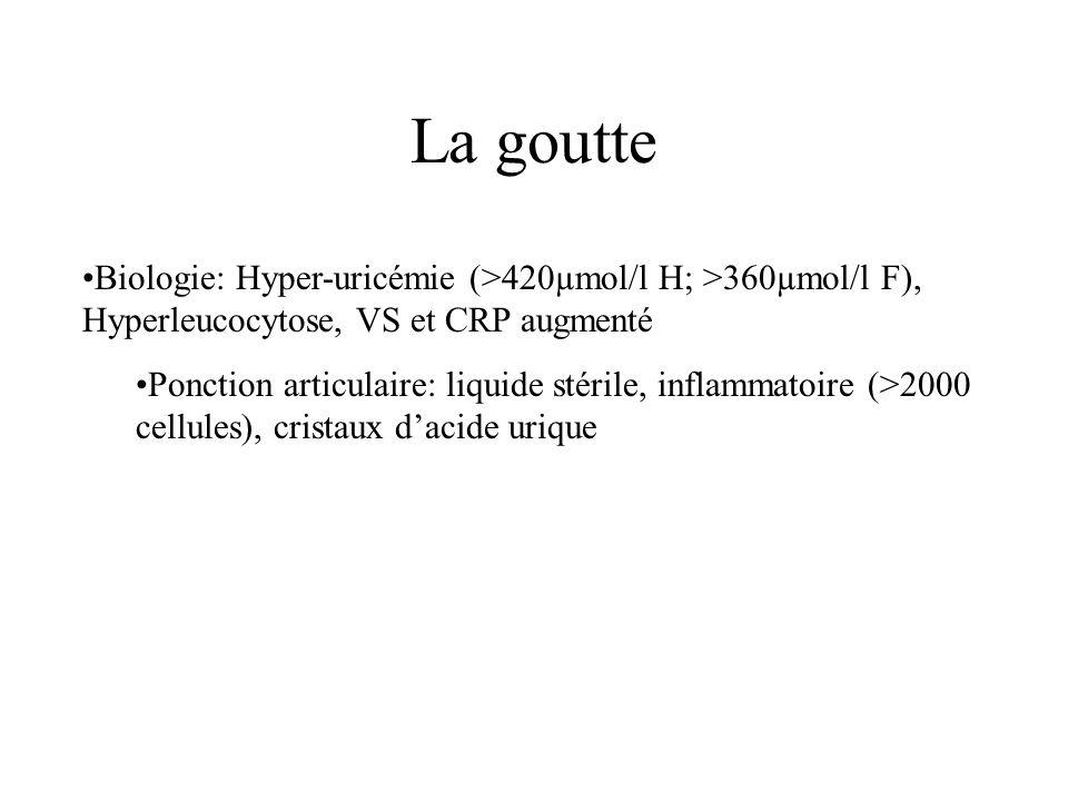 •Biologie: Hyper-uricémie (>420µmol/l H; >360µmol/l F), Hyperleucocytose, VS et CRP augmenté •Ponction articulaire: liquide stérile, inflammatoire (>2000 cellules), cristaux d'acide urique La goutte
