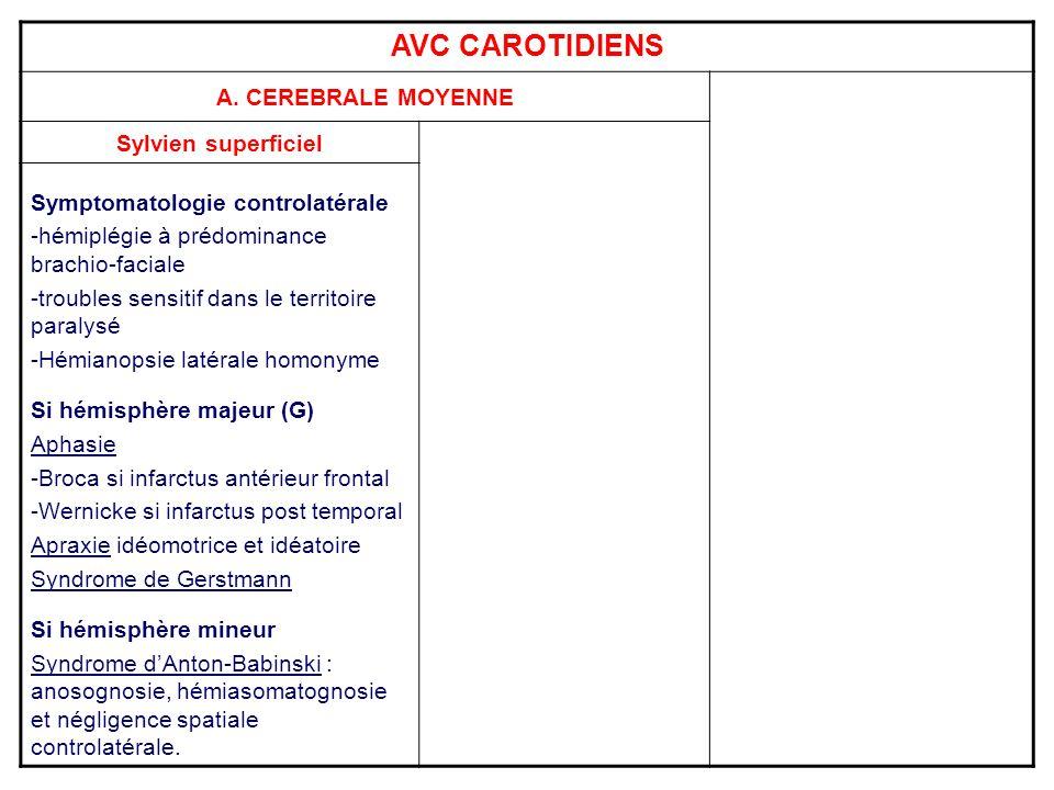 AVC CAROTIDIENS A. CEREBRALE MOYENNE Sylvien superficiel Symptomatologie controlatérale -hémiplégie à prédominance brachio-faciale -troubles sensitif