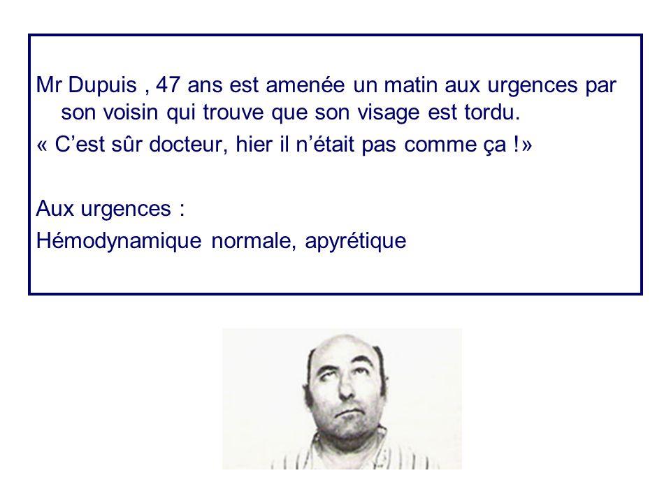 Mr Dupuis, 47 ans est amenée un matin aux urgences par son voisin qui trouve que son visage est tordu. « C'est sûr docteur, hier il n'était pas comme