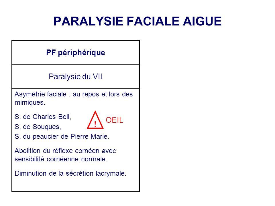 PARALYSIE FACIALE AIGUE PF périphérique Paralysie du VII Asymétrie faciale : au repos et lors des mimiques. S. de Charles Bell, S. de Souques, S. du p