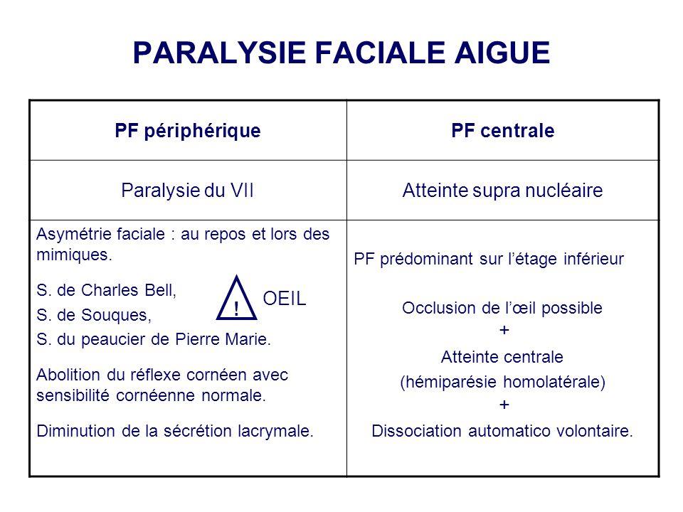 PARALYSIE FACIALE AIGUE PF périphériquePF centrale Paralysie du VIIAtteinte supra nucléaire Asymétrie faciale : au repos et lors des mimiques. S. de C
