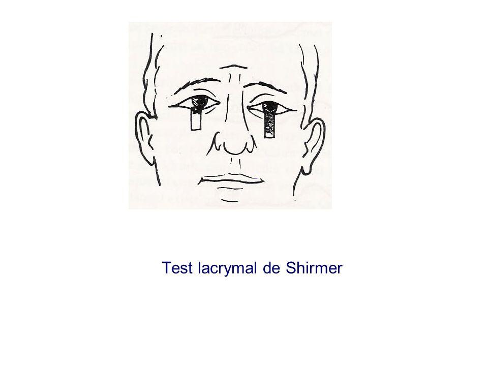 Test lacrymal de Shirmer