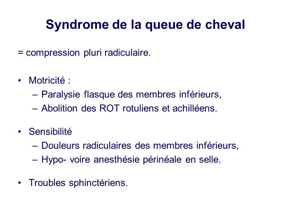 Syndrome de la queue de cheval = compression pluri radiculaire. •Motricité : –Paralysie flasque des membres inférieurs, –Abolition des ROT rotuliens e