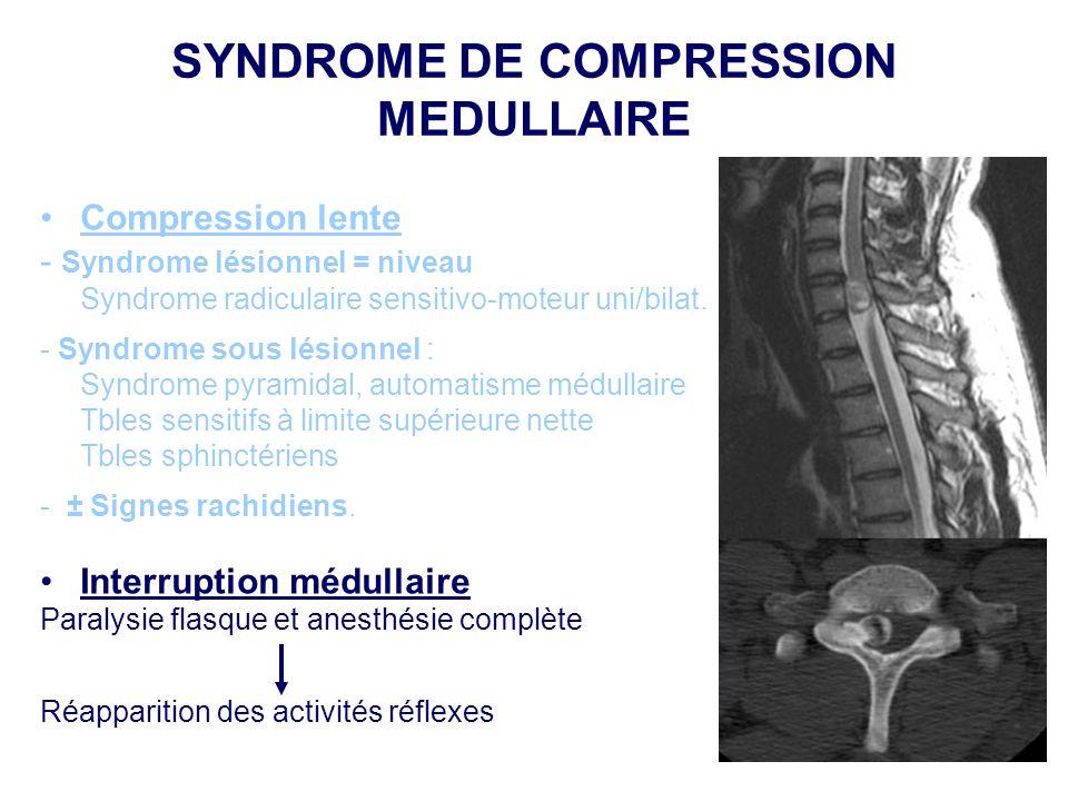SYNDROME DE COMPRESSION MEDULLAIRE •Compression lente - Syndrome lésionnel = niveau Syndrome radiculaire sensitivo-moteur uni/bilat. - Syndrome sous l