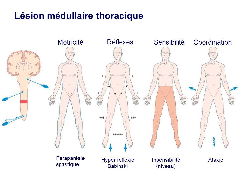 Lésion médullaire thoracique Réflexes SensibilitéCoordinationMotricité Paraparésie spastique Hyper reflexie Babinski Insensibilité (niveau) Ataxie