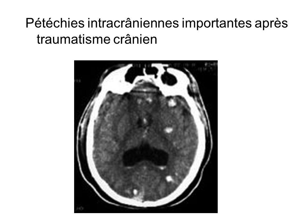 Pétéchies intracrâniennes importantes après traumatisme crânien