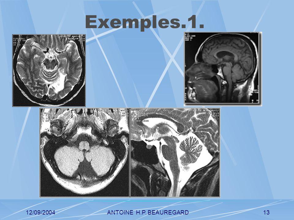 12/09/2004ANTOINE H.P. BEAUREGARD13 Exemples.1.