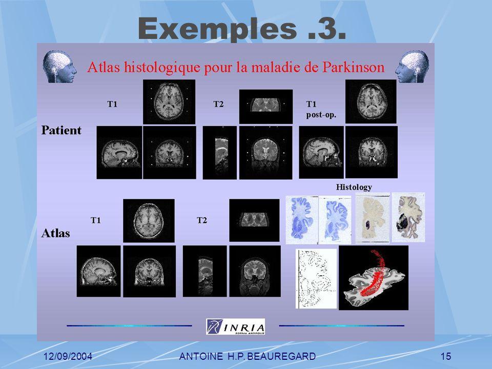 12/09/2004ANTOINE H.P. BEAUREGARD15 Exemples.3.