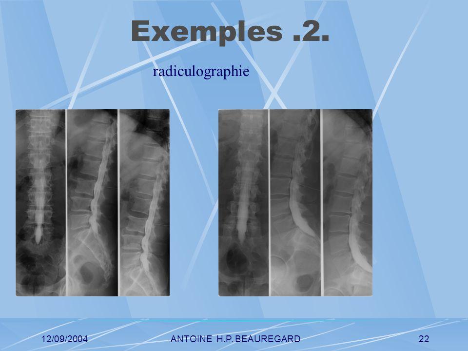 12/09/2004ANTOINE H.P. BEAUREGARD22 Exemples.2. radiculographie