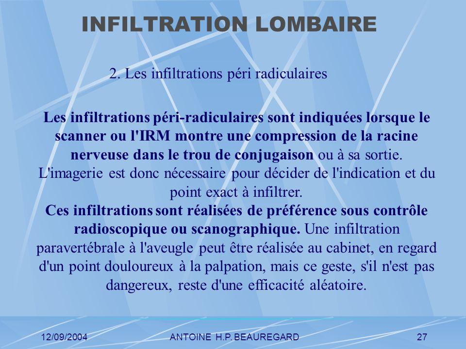 12/09/2004ANTOINE H.P. BEAUREGARD27 INFILTRATION LOMBAIRE 2.