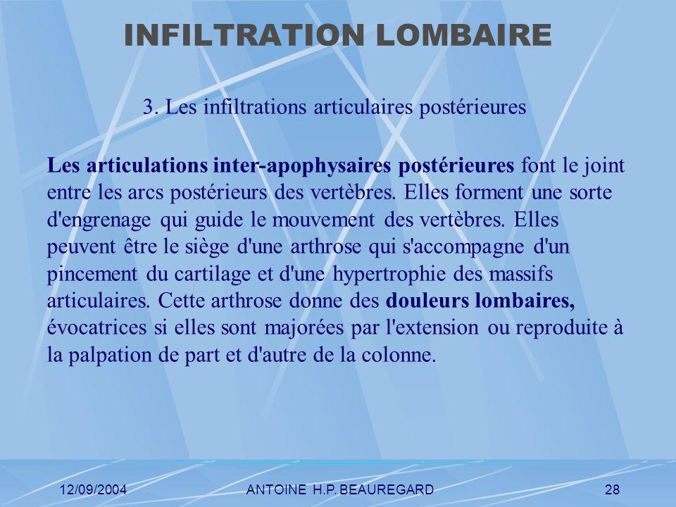 12/09/2004ANTOINE H.P. BEAUREGARD28 INFILTRATION LOMBAIRE 3.