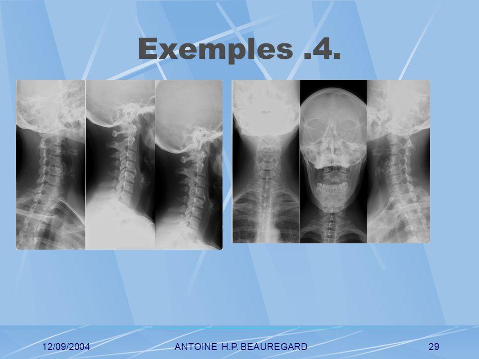 12/09/2004ANTOINE H.P. BEAUREGARD29 Exemples.4.