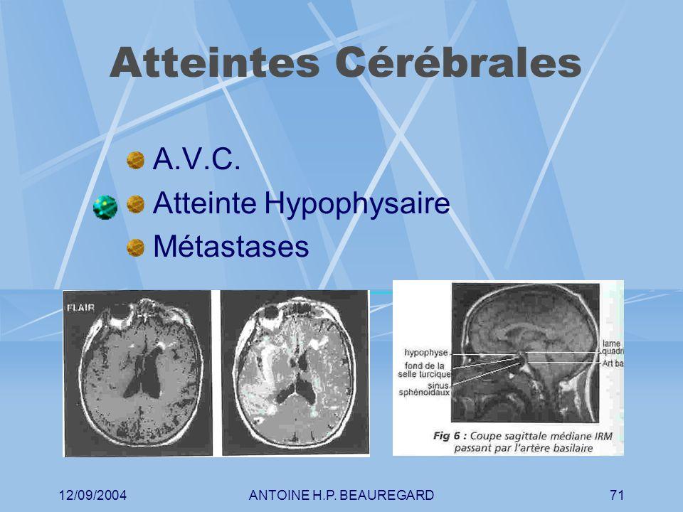 12/09/2004ANTOINE H.P. BEAUREGARD71 Atteintes Cérébrales A.V.C. Atteinte Hypophysaire Métastases