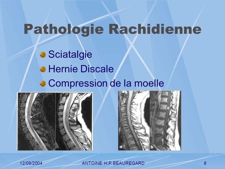 12/09/2004ANTOINE H.P. BEAUREGARD9 Pathologie tumorale Conflits neuro-vasculaire Adénome
