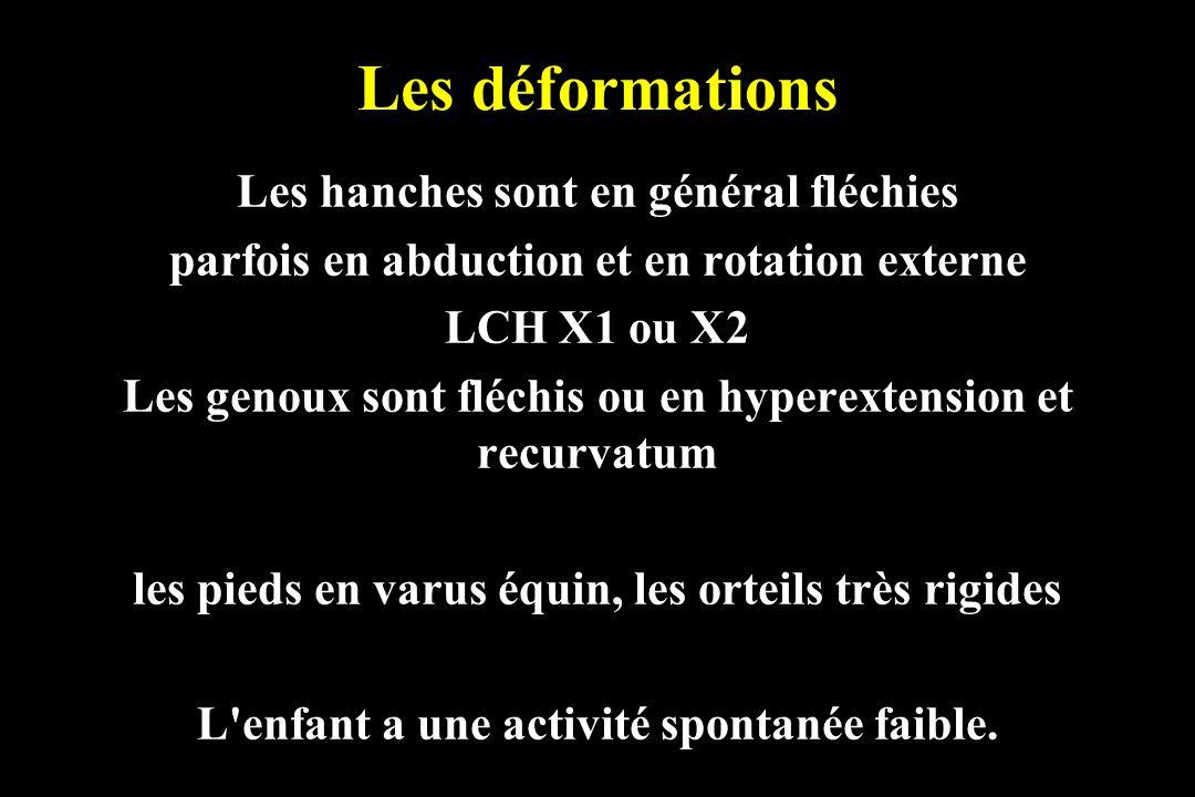 Les déformations Les hanches sont en général fléchies parfois en abduction et en rotation externe LCH X1 ou X2 Les genoux sont fléchis ou en hyperexte