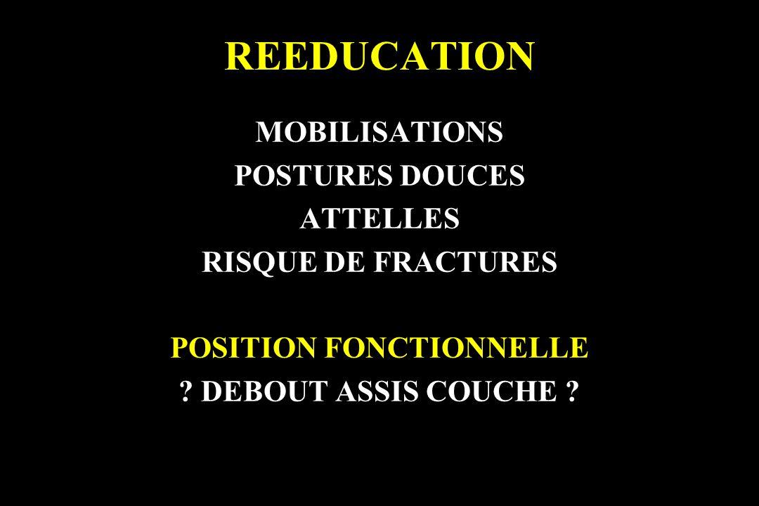 REEDUCATION MOBILISATIONS POSTURES DOUCES ATTELLES RISQUE DE FRACTURES POSITION FONCTIONNELLE ? DEBOUT ASSIS COUCHE ?