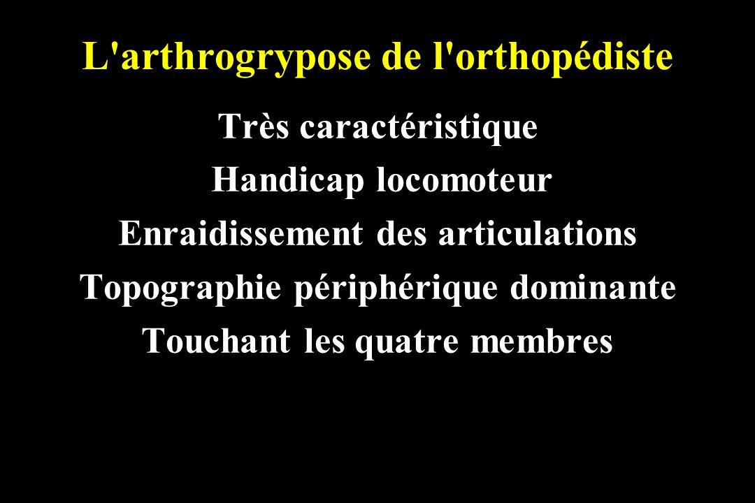 L arthrogrypose de l orthopédiste Insuffisance musculaire Raideur des articulations Empâtement graisseux sous-cutané Fossettes cutanées et perte des sillons autours de certaines articulations.