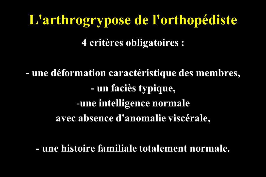 L'arthrogrypose de l'orthopédiste 4 critères obligatoires : - une déformation caractéristique des membres, - un faciès typique, -une intelligence norm