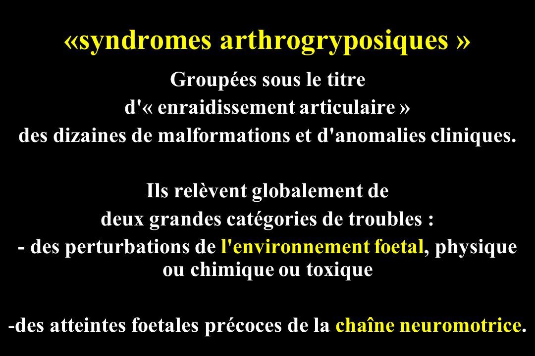 «syndromes arthrogryposiques » Groupées sous le titre d'« enraidissement articulaire » des dizaines de malformations et d'anomalies cliniques. Ils rel