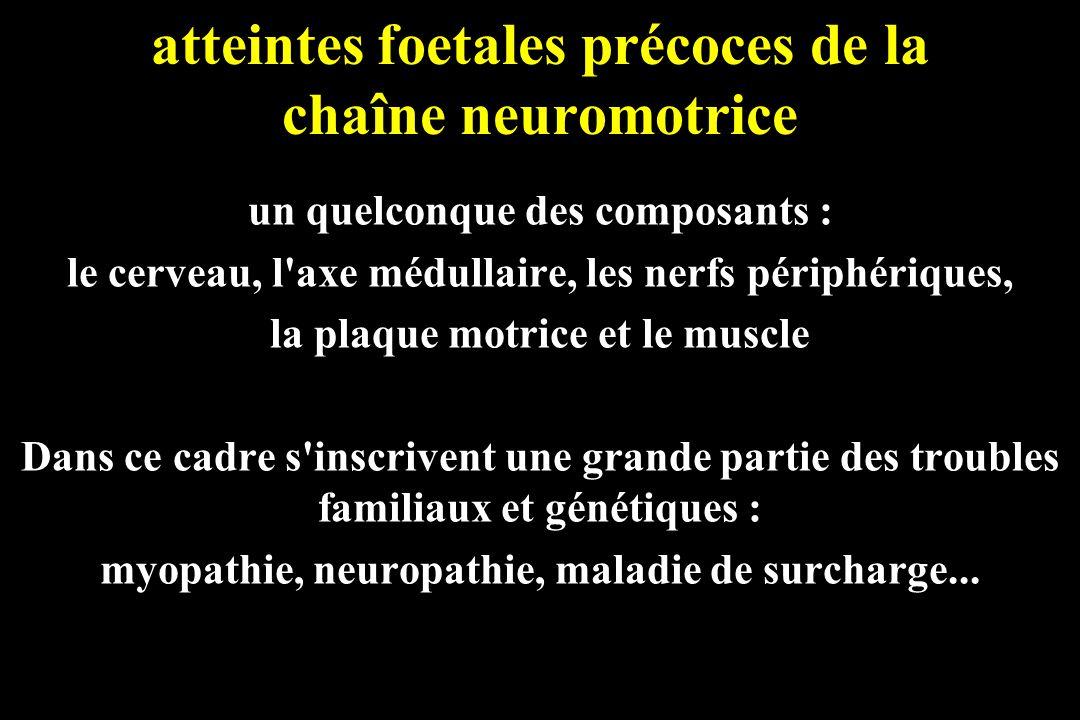 atteintes foetales précoces de la chaîne neuromotrice un quelconque des composants : le cerveau, l'axe médullaire, les nerfs périphériques, la plaque