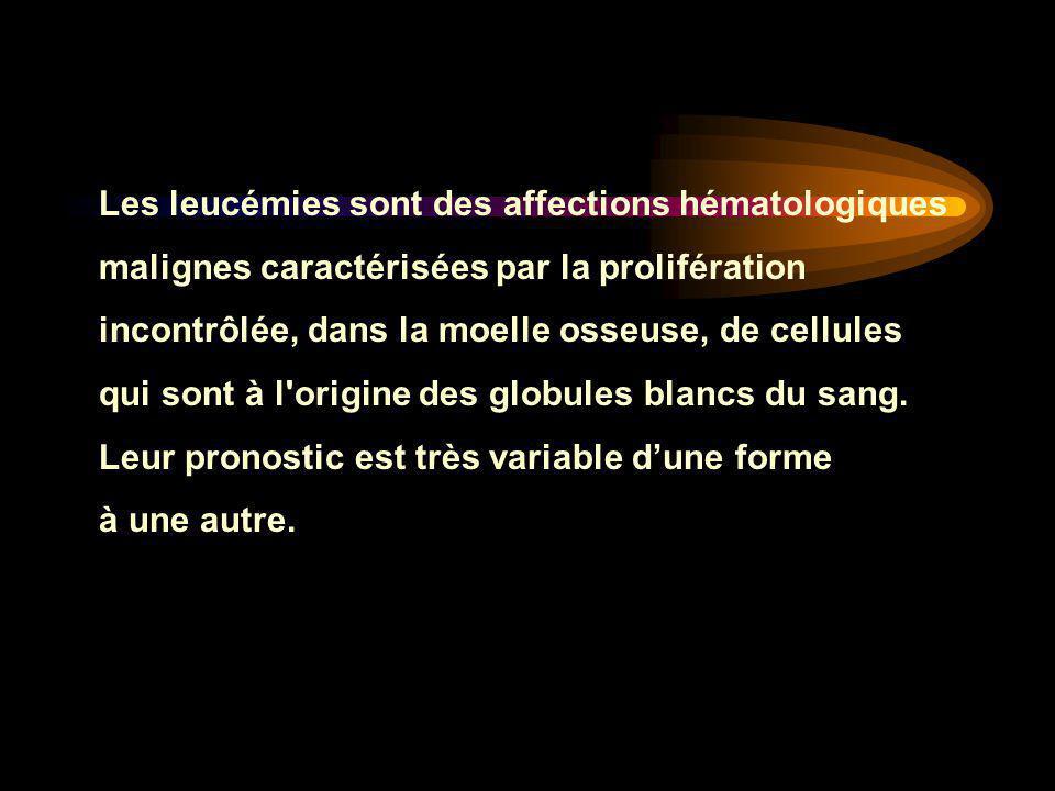Les leucémies sont des affections hématologiques malignes caractérisées par la prolifération incontrôlée, dans la moelle osseuse, de cellules qui sont