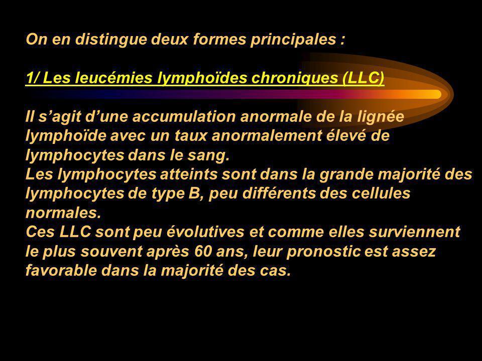 On en distingue deux formes principales : 1/ Les leucémies lymphoïdes chroniques (LLC) Il s'agit d'une accumulation anormale de la lignée lymphoïde av