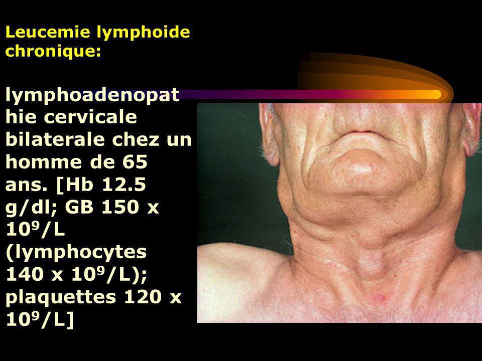 Leucemie lymphoide chronique: lymphoadenopat hie cervicale bilaterale chez un homme de 65 ans. [Hb 12.5 g/dl; GB 150 x 10 9 /L (lymphocytes 140 x 10 9