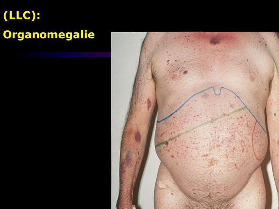 Organomegalie (LLC):