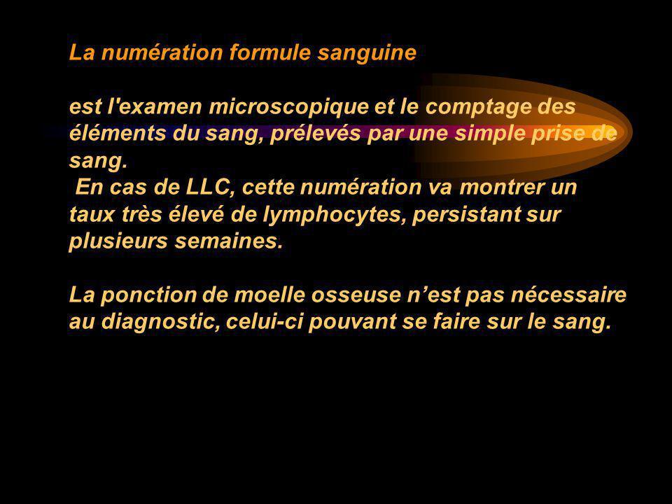 La numération formule sanguine est l'examen microscopique et le comptage des éléments du sang, prélevés par une simple prise de sang. En cas de LLC, c