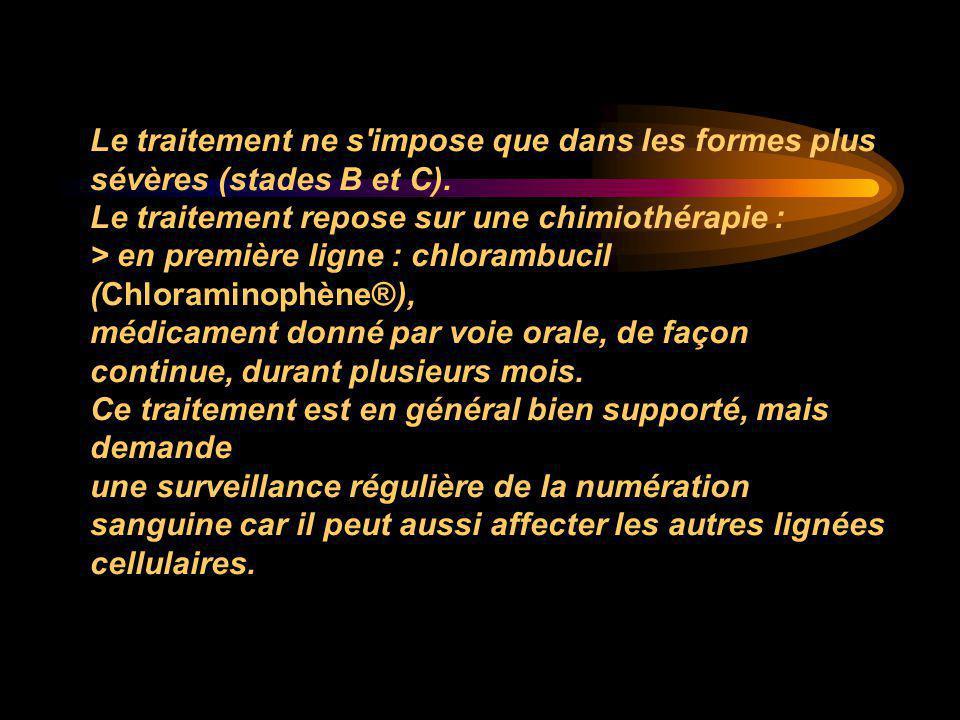 Le traitement ne s'impose que dans les formes plus sévères (stades B et C). Le traitement repose sur une chimiothérapie : > en première ligne : chlora